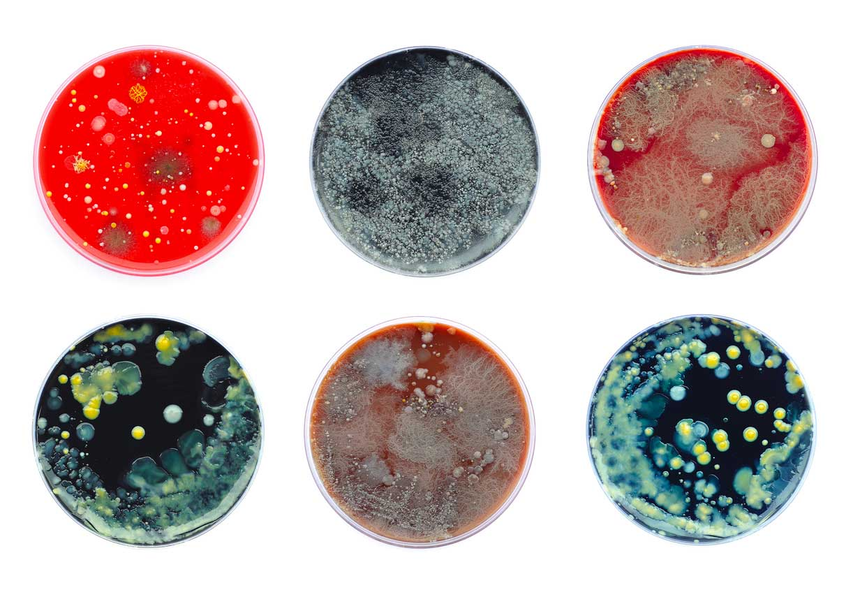 12 types of mold